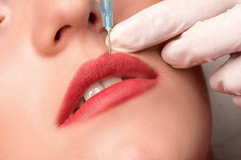 Perfilado y Volumen de Labios con Ácido Hialurónico