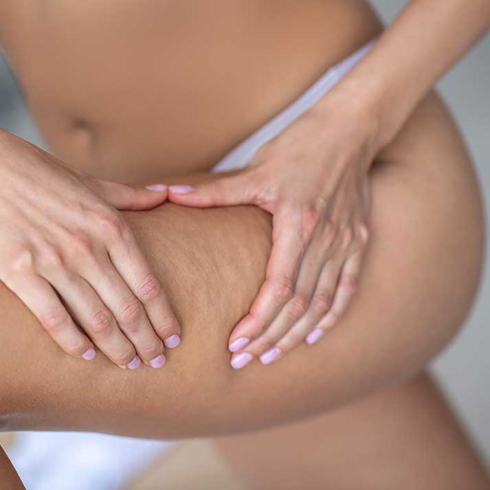 Tratamiento Anti-Celulitis